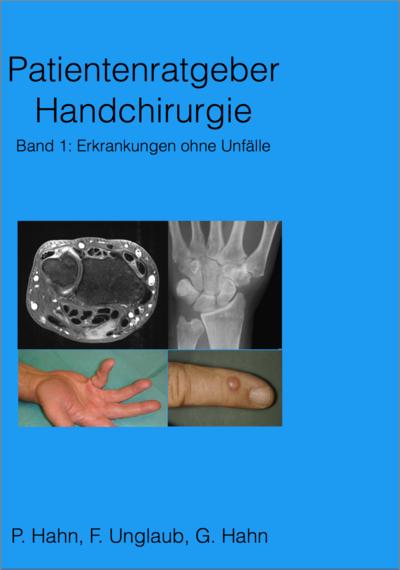 Patientenratgeber Handchirurgie